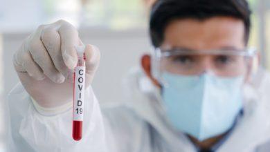 Photo of Coronavirus: ¿Qué puedo hacer para protegerme y prevenir la propagación de la enfermedad?